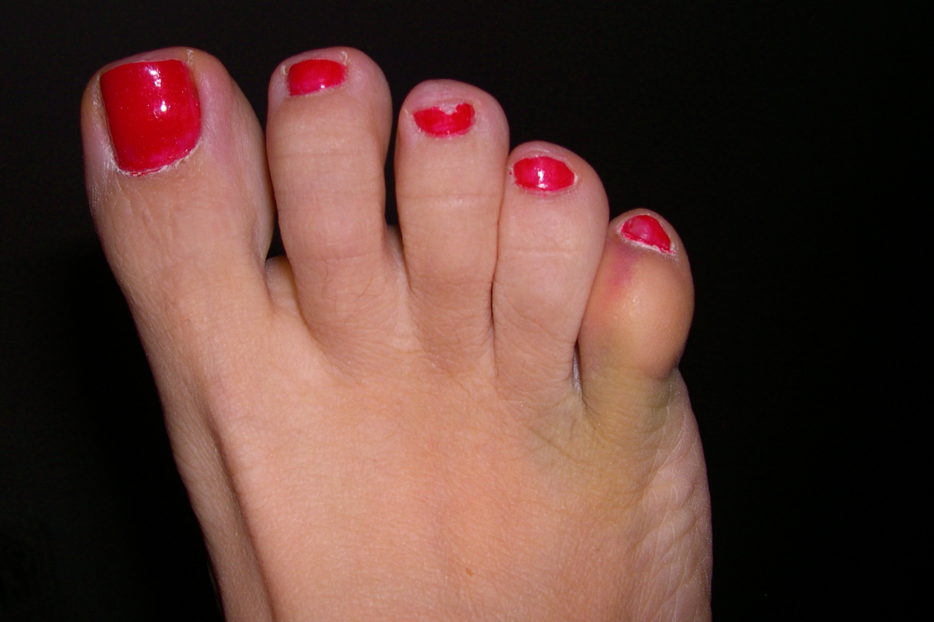 The gallery for --> Lister Corn On Little Toe